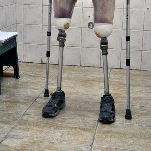 protezy nóg