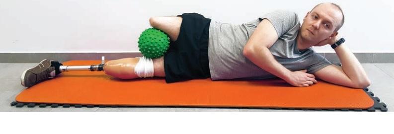ćwiczenia po amputacji na poziomie uda